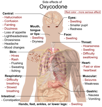 English: Main side effects of Oxycodone. Red c...