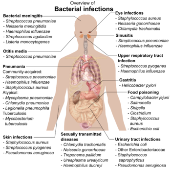English: Overview of the main bacterial infect...