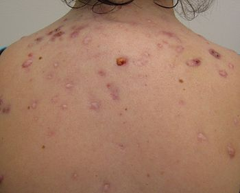English: Cystic acne on the back.