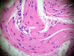 Tecido muscular liso (bexiga de cão)